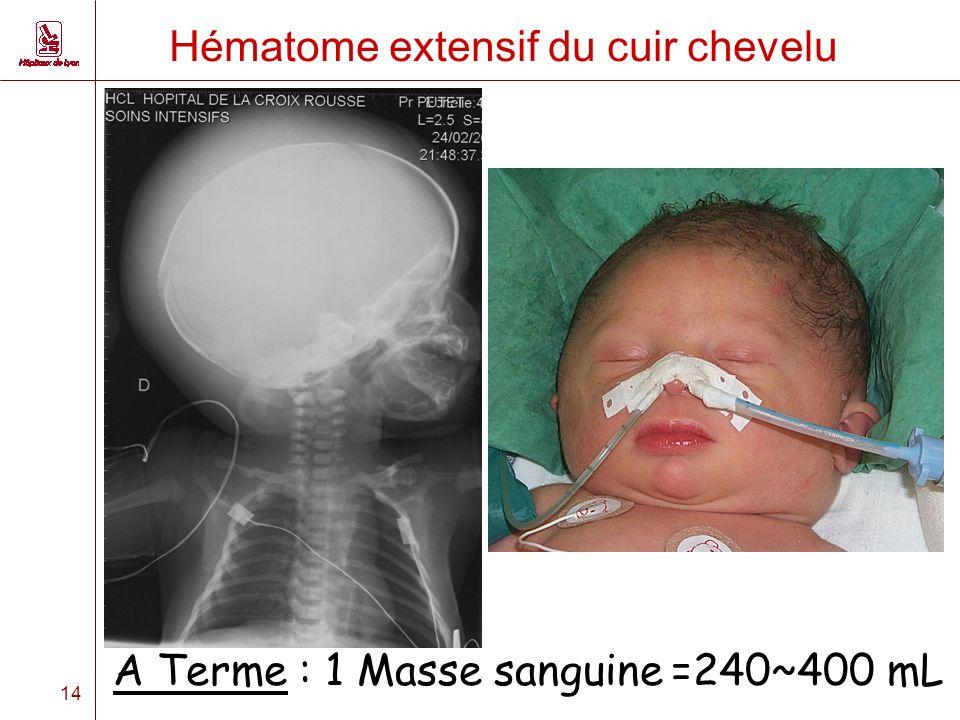 14 Hématome extensif du cuir chevelu A Terme : 1 Masse sanguine =240~400 mL