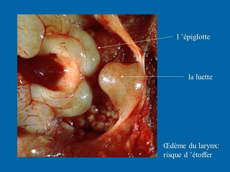 la luette l épiglotte Œdème du larynx: risque d étoffer