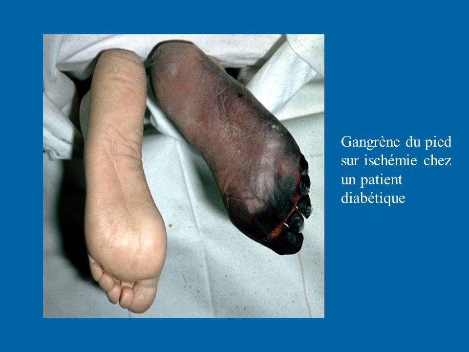 Gangrène du pied sur ischémie chez un patient diabétique