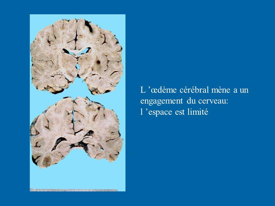 L œdème cérébral mène a un engagement du cerveau: l espace est limité