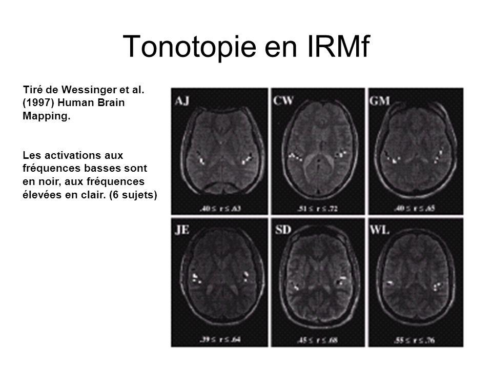 13 Tonotopie en IRMf Tiré de Wessinger et al. (1997) Human Brain Mapping. Les activations aux fréquences basses sont en noir, aux fréquences élevées e
