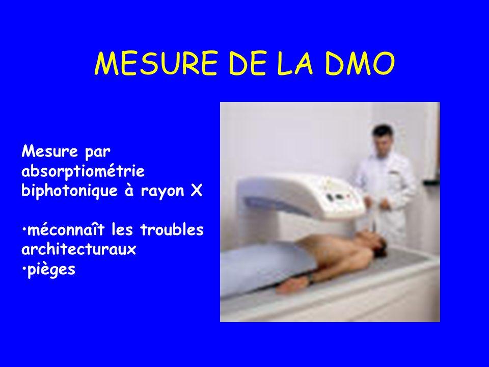 MESURE DE LA DMO Mesure par absorptiométrie biphotonique à rayon X méconnaît les troubles architecturaux pièges