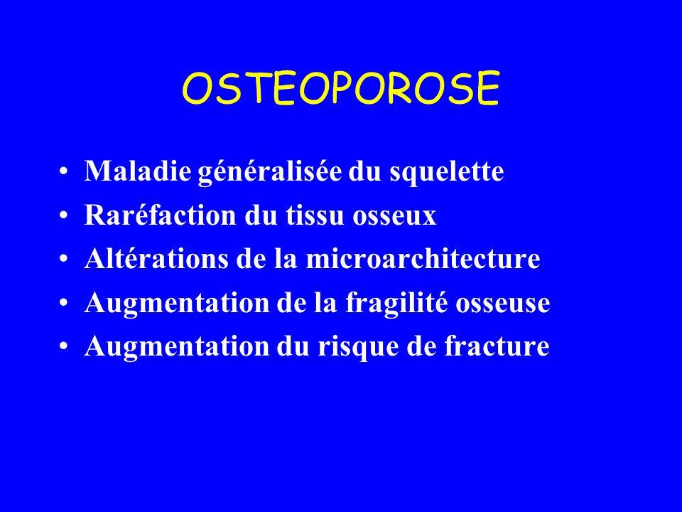 OSTEOPOROSE Maladie généralisée du squelette Raréfaction du tissu osseux Altérations de la microarchitecture Augmentation de la fragilité osseuse Augm