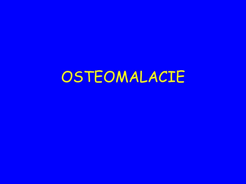 OSTEOMALACIE