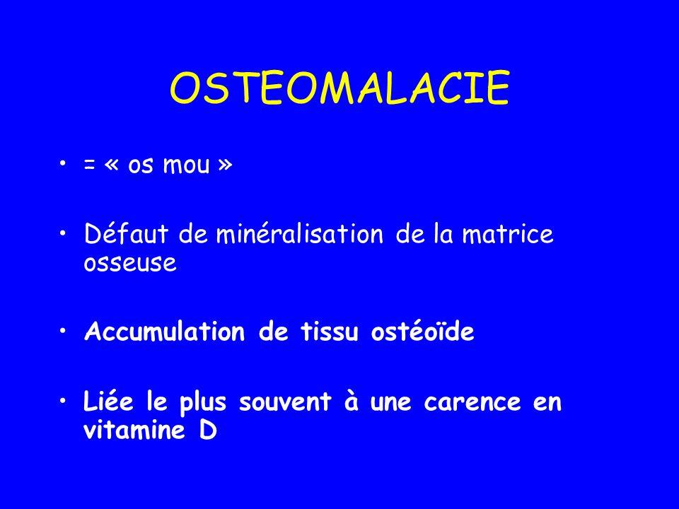 = « os mou » Défaut de minéralisation de la matrice osseuse Accumulation de tissu ostéoïde Liée le plus souvent à une carence en vitamine D