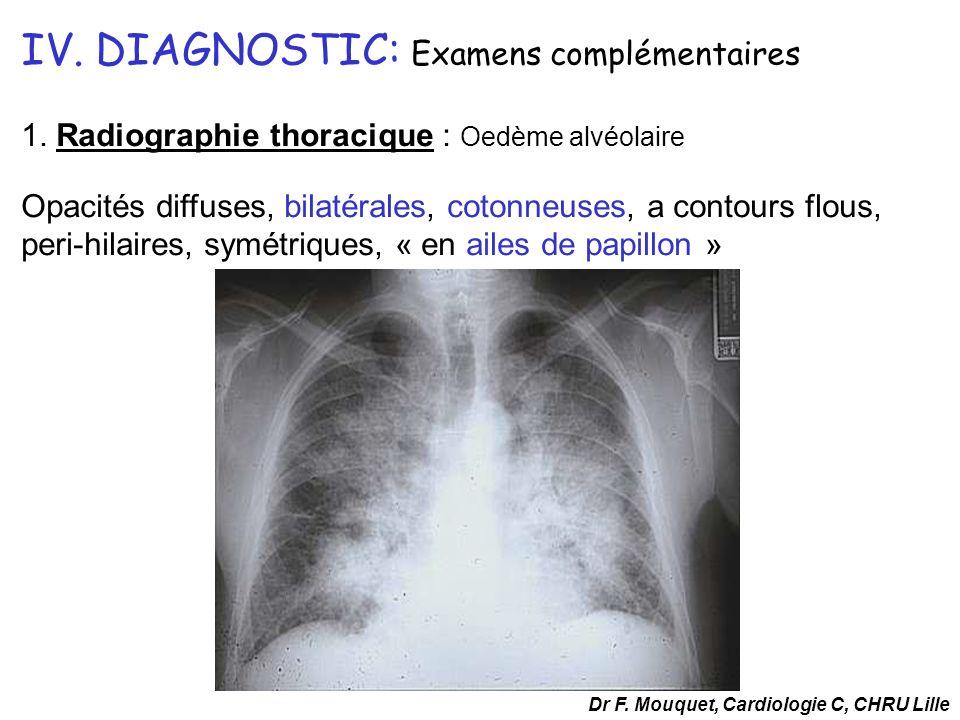 1. Radiographie thoracique : Oedème alvéolaire Opacités diffuses, bilatérales, cotonneuses, a contours flous, peri-hilaires, symétriques, « en ailes d