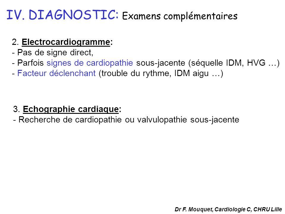 IV. DIAGNOSTIC: Examens complémentaires 2. Electrocardiogramme: - Pas de signe direct, - Parfois signes de cardiopathie sous-jacente (séquelle IDM, HV
