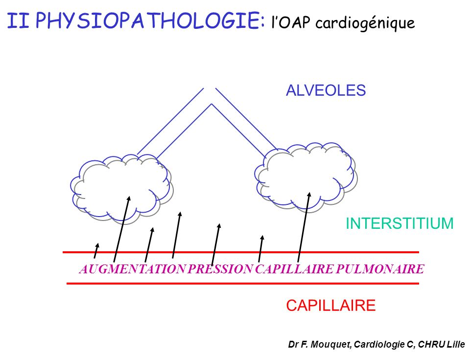 CAPILLAIRE ALVEOLES INTERSTITIUM II PHYSIOPATHOLOGIE: lOAP cardiogénique AUGMENTATION PRESSION CAPILLAIRE PULMONAIRE Dr F. Mouquet, Cardiologie C, CHR