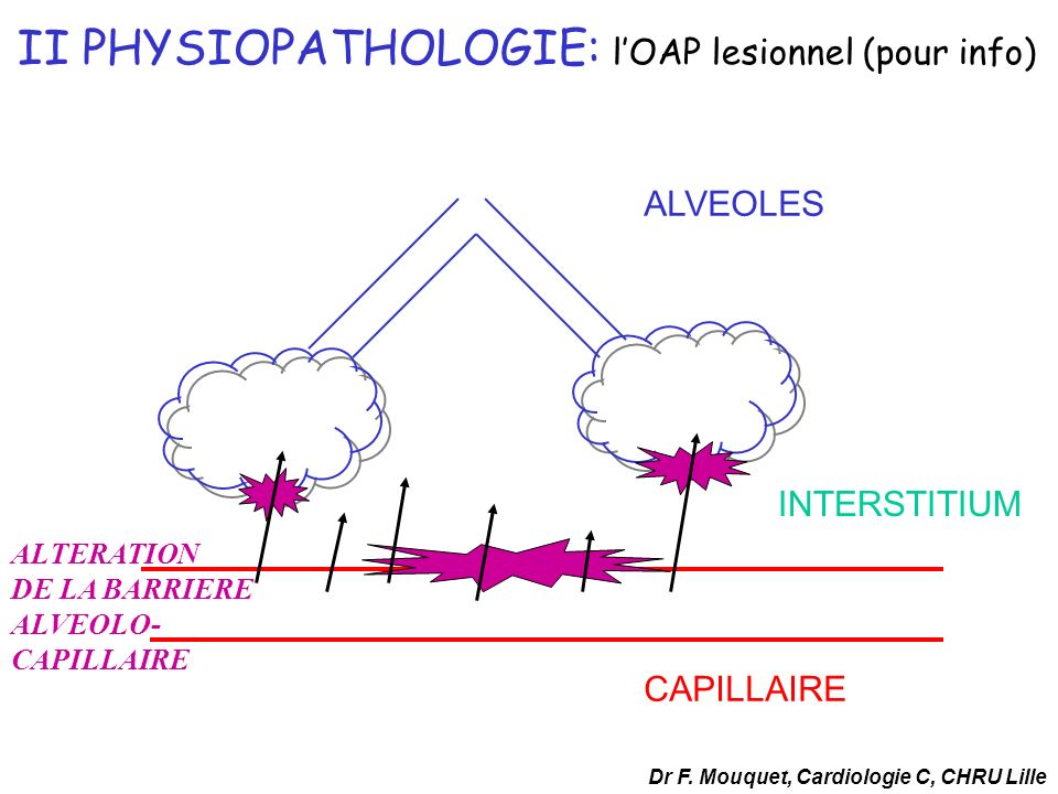CAPILLAIRE ALVEOLES INTERSTITIUM ALTERATION DE LA BARRIERE ALVEOLO- CAPILLAIRE II PHYSIOPATHOLOGIE: lOAP lesionnel (pour info) Dr F. Mouquet, Cardiolo