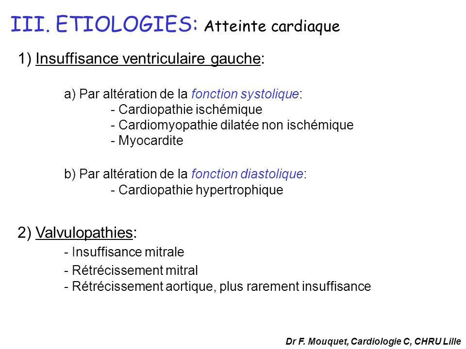 III. ETIOLOGIES: Atteinte cardiaque 1) Insuffisance ventriculaire gauche: a) Par altération de la fonction systolique: - Cardiopathie ischémique - Car