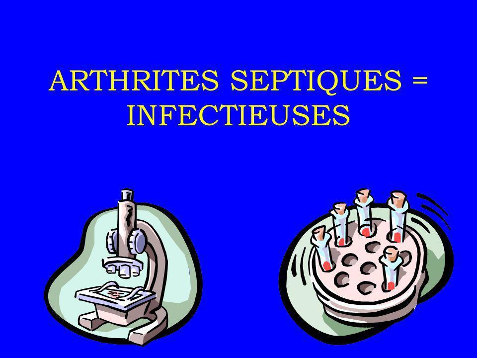 ARTHRITES SEPTIQUES Définition prolifération intra- articulaire dun micro-organisme = arthrites réactionnelles Arthrite septique = URGENCE