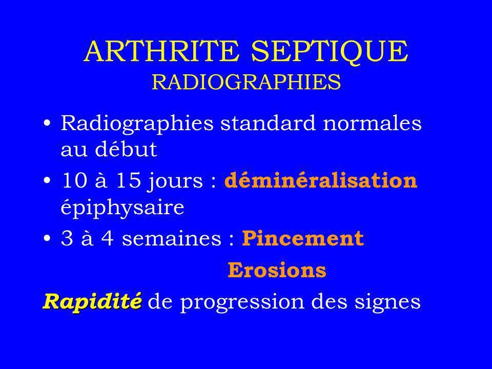 ARTHRITE SEPTIQUE RADIOGRAPHIES Radiographies standard normales au début 10 à 15 jours : déminéralisation épiphysaire 3 à 4 semaines : Pincement Erosi