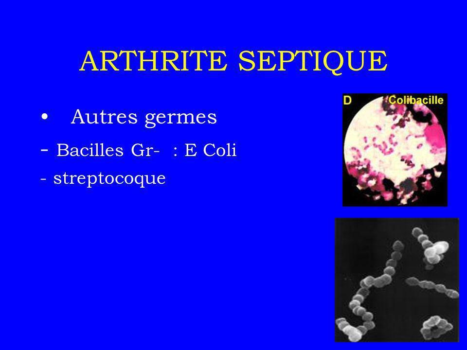 ARTHRITE SEPTIQUE Facteurs favorisants (diabète, alcoolisme, corticothérapie immunodépression, geste local…) Clinique :-monoarthrite (genou) -brutale -douleur -rougeur, chaleur -impotence fonctionnelle -T°, frissons