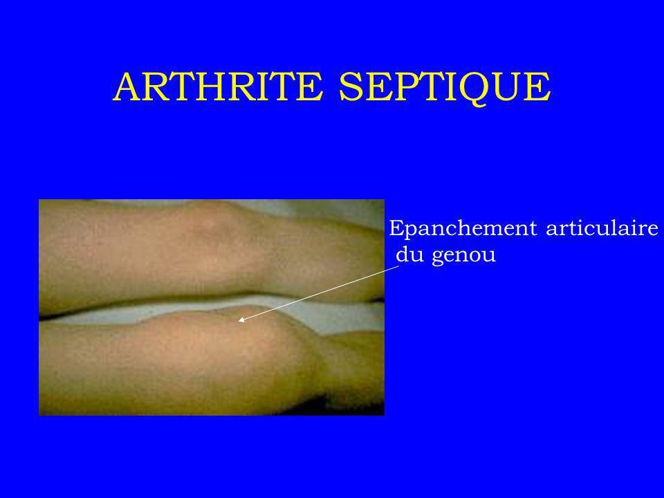 ARTHRITE SEPTIQUE Epanchement articulaire du genou