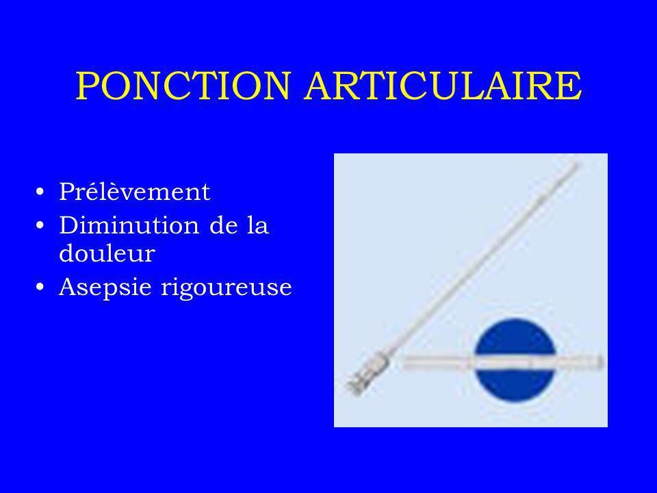 PONCTION ARTICULAIRE Flacons stériles Bactériologie Cytologie Biochimie Microcristaux Aspect macroscopique