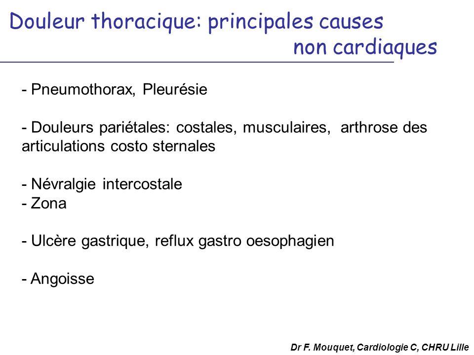 Douleur thoracique: principales causes non cardiaques - Pneumothorax, Pleurésie - Douleurs pariétales: costales, musculaires, arthrose des articulatio