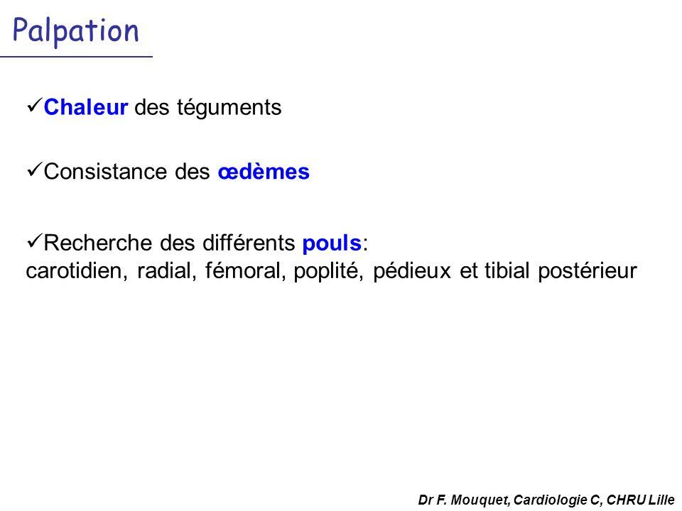 Palpation Chaleur des téguments Dr F. Mouquet, Cardiologie C, CHRU Lille Recherche des différents pouls: carotidien, radial, fémoral, poplité, pédieux