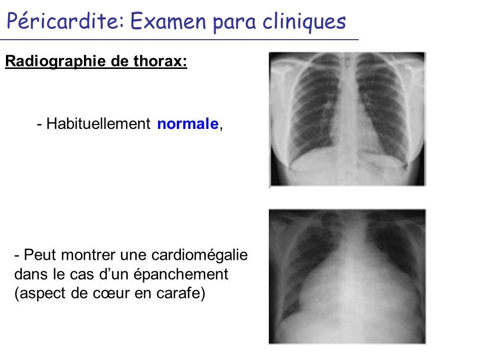 Péricardite: Examen para cliniques Radiographie de thorax: - Peut montrer une cardiomégalie dans le cas dun épanchement (aspect de cœur en carafe) - Habituellement normale,