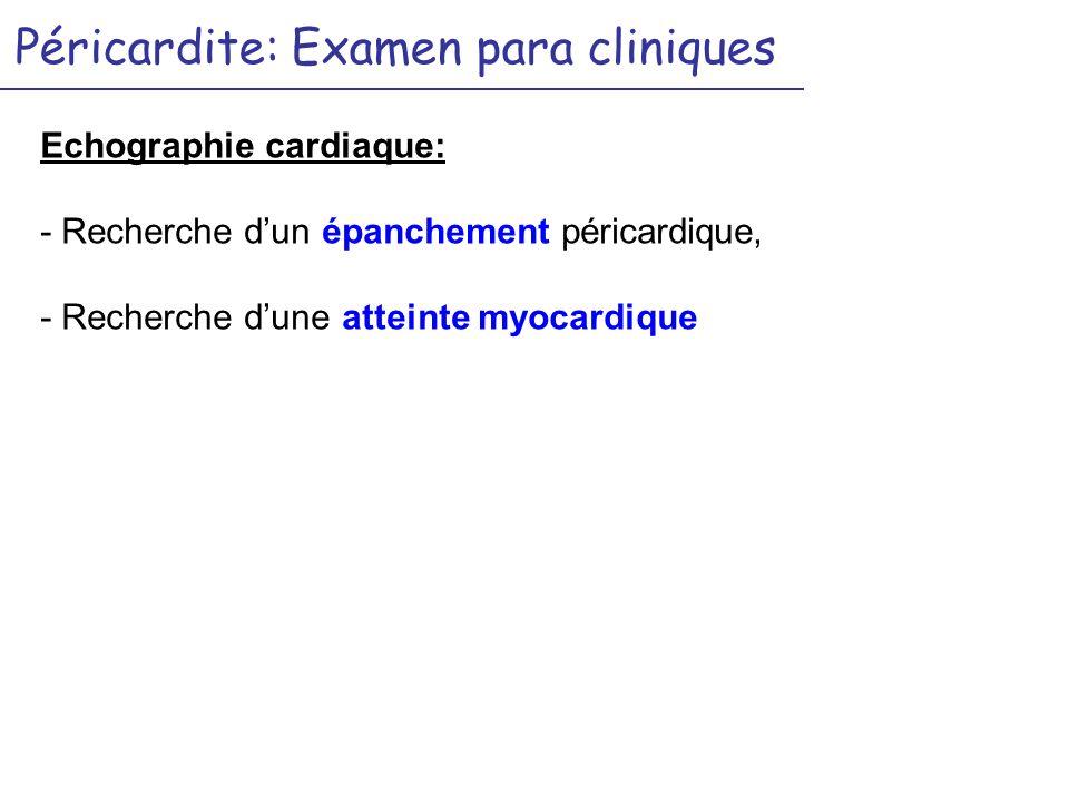 Péricardite: Examen para cliniques Echographie cardiaque: - Recherche dun épanchement péricardique, - Recherche dune atteinte myocardique