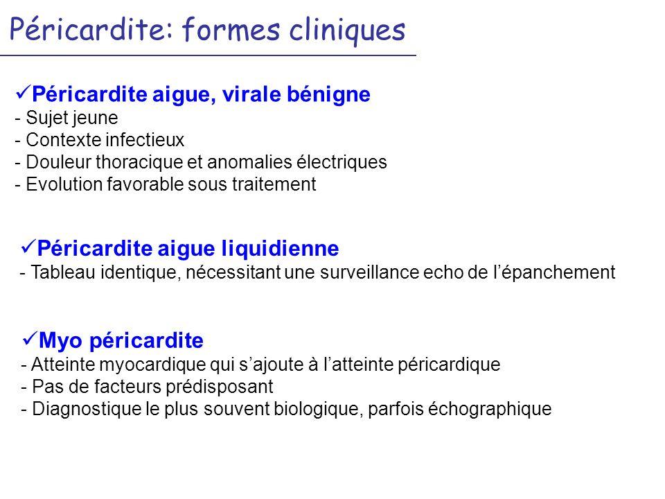 Péricardite: formes cliniques Péricardite aigue, virale bénigne - Sujet jeune - Contexte infectieux - Douleur thoracique et anomalies électriques - Ev