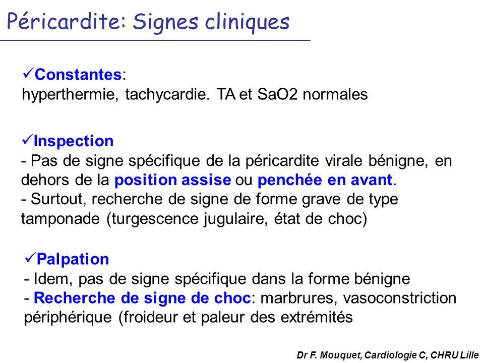 Péricardite: Signes cliniques Inspection - Pas de signe spécifique de la péricardite virale bénigne, en dehors de la position assise ou penchée en avant.