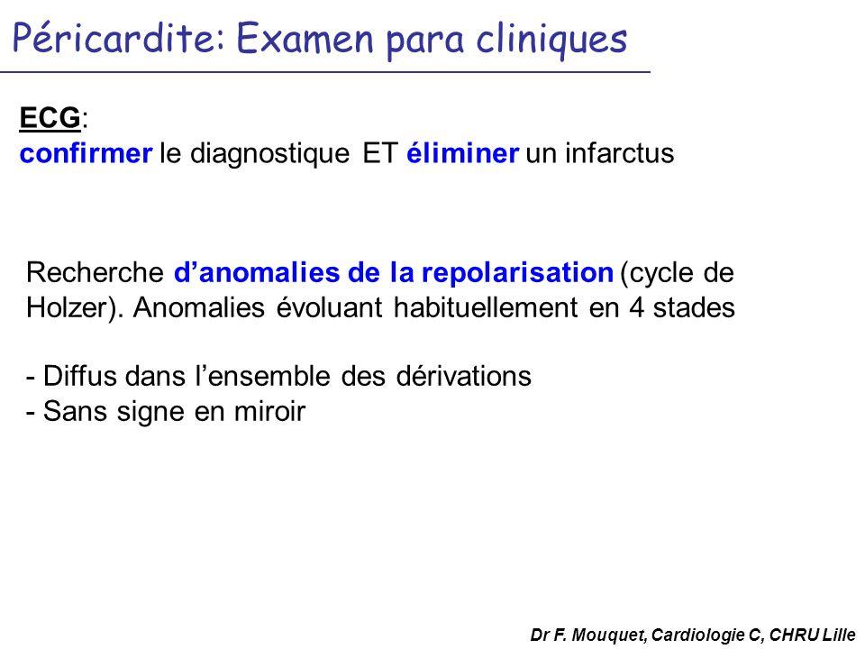 Péricardite: Examen para cliniques ECG: confirmer le diagnostique ET éliminer un infarctus Dr F. Mouquet, Cardiologie C, CHRU Lille Recherche danomali
