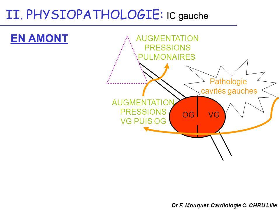 Dr F. Mouquet, Cardiologie C, CHRU Lille II. PHYSIOPATHOLOGIE: IC gauche OGVG AUGMENTATION PRESSIONS VG PUIS OG AUGMENTATION PRESSIONS PULMONAIRES EN