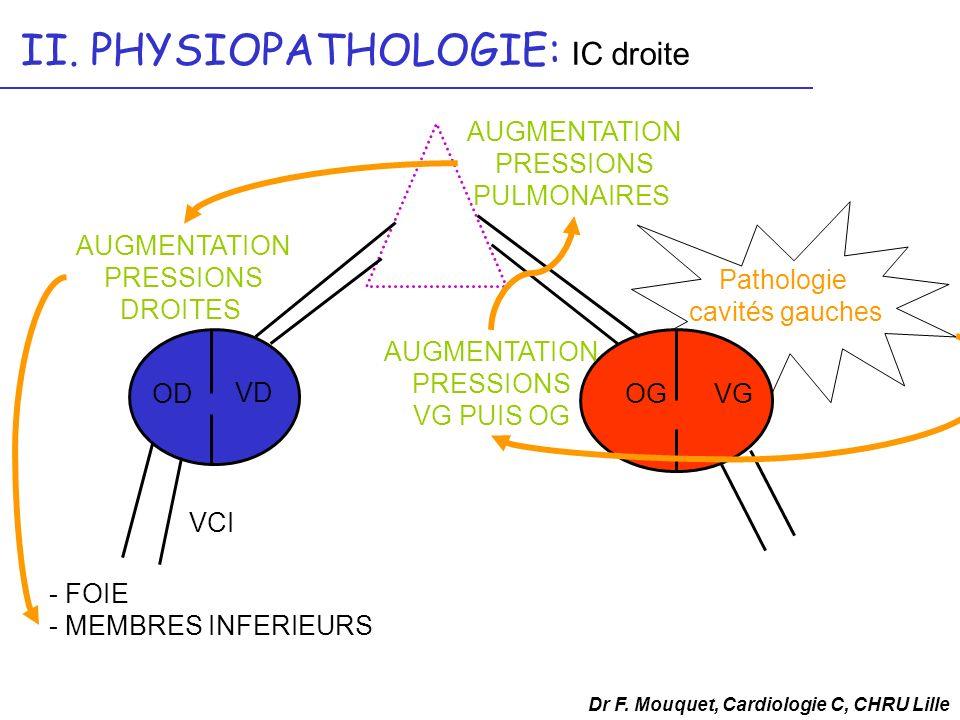 Dr F. Mouquet, Cardiologie C, CHRU Lille II. PHYSIOPATHOLOGIE: IC droite OD VD OGVG VCI - FOIE - MEMBRES INFERIEURS AUGMENTATION PRESSIONS VG PUIS OG