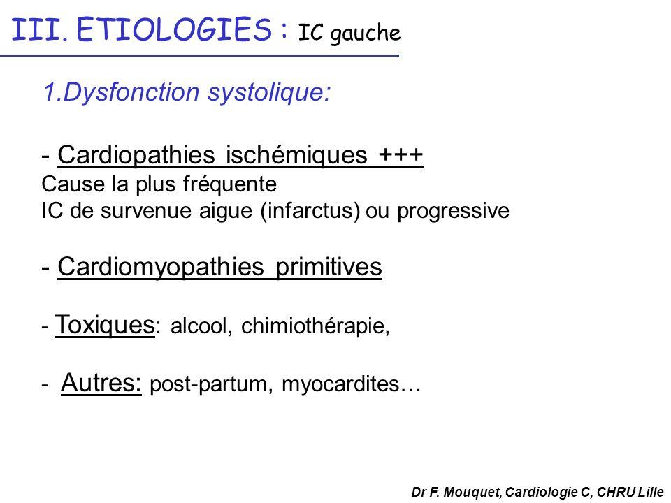 III. ETIOLOGIES : IC gauche 1.Dysfonction systolique: - Cardiopathies ischémiques +++ Cause la plus fréquente IC de survenue aigue (infarctus) ou prog