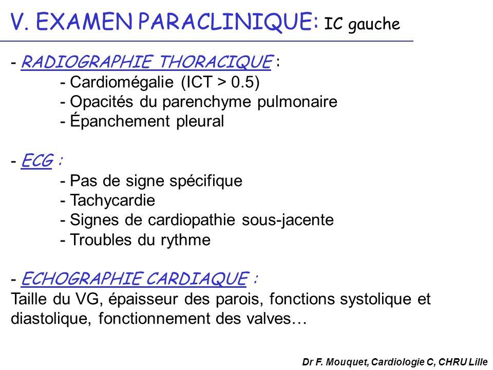 Dr F. Mouquet, Cardiologie C, CHRU Lille V. EXAMEN PARACLINIQUE: IC gauche - RADIOGRAPHIE THORACIQUE : - Cardiomégalie (ICT > 0.5) - Opacités du paren