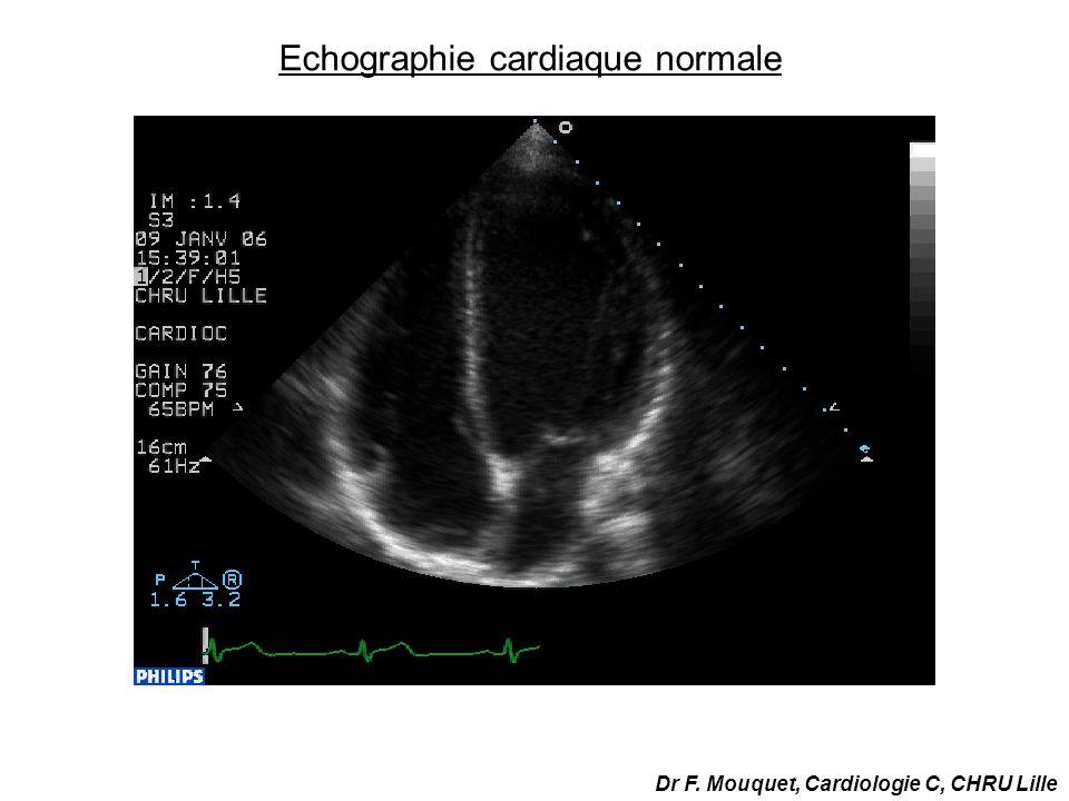 Echographie cardiaque normale Dr F. Mouquet, Cardiologie C, CHRU Lille