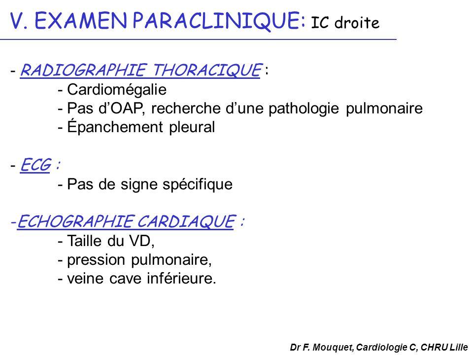V. EXAMEN PARACLINIQUE: IC droite - RADIOGRAPHIE THORACIQUE : - Cardiomégalie - Pas dOAP, recherche dune pathologie pulmonaire - Épanchement pleural -