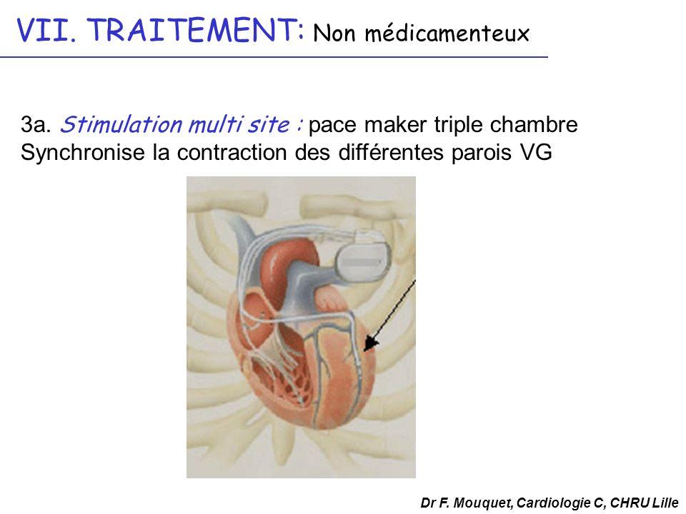 3a. Stimulation multi site : pace maker triple chambre Synchronise la contraction des différentes parois VG Dr F. Mouquet, Cardiologie C, CHRU Lille V