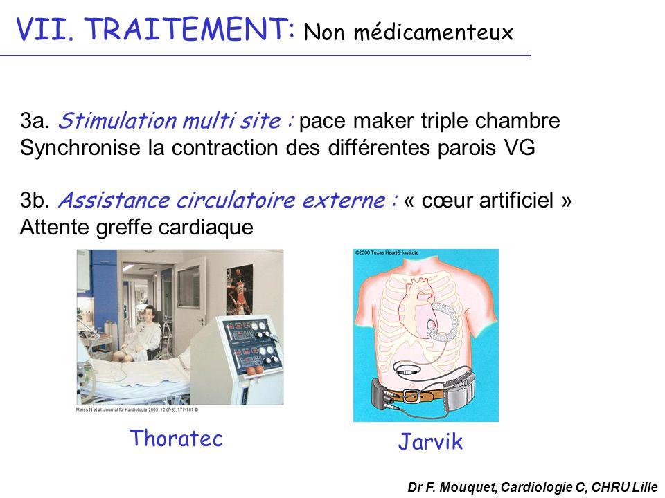 3a. Stimulation multi site : pace maker triple chambre Synchronise la contraction des différentes parois VG 3b. Assistance circulatoire externe : « cœ