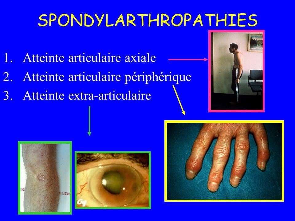 1.Atteinte articulaire axiale 2.Atteinte articulaire périphérique 3.Atteinte extra-articulaire