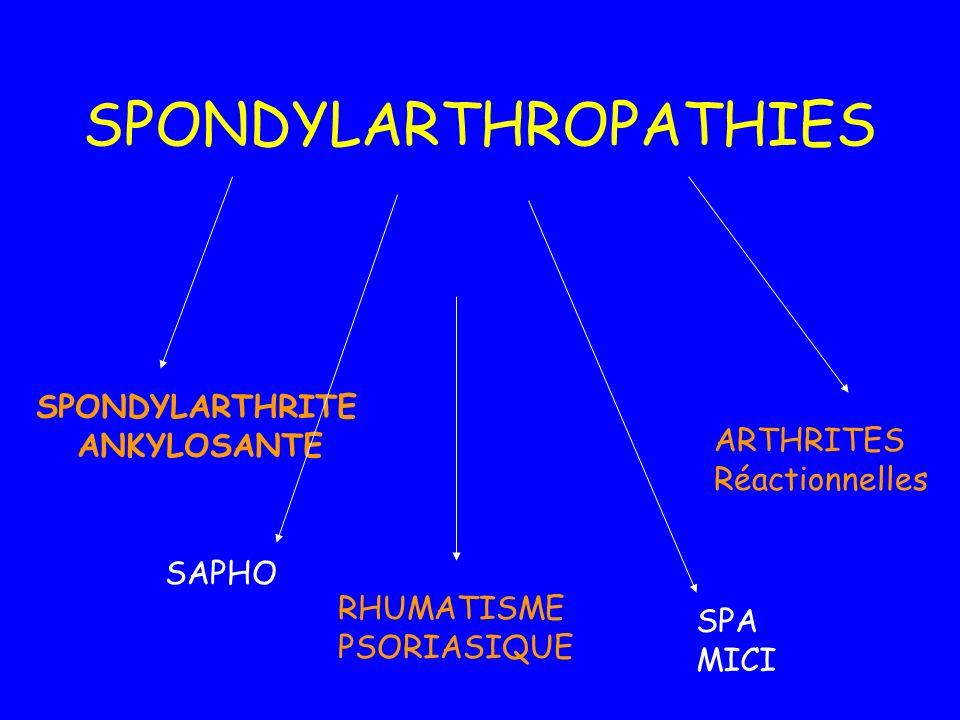 SPONDYLARTHROPATHIES SPONDYLARTHRITE ANKYLOSANTE RHUMATISME PSORIASIQUE ARTHRITES Réactionnelles SPA MICI SAPHO