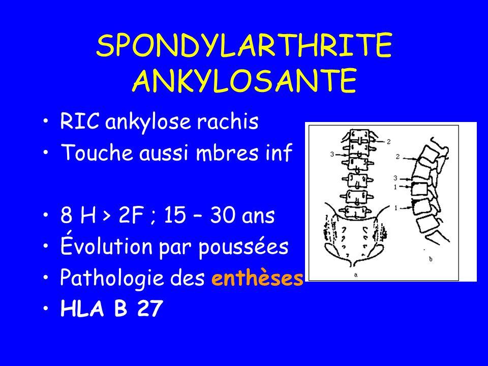 SPONDYLARTHRITE ANKYLOSANTE RIC ankylose rachis Touche aussi mbres inf 8 H > 2F ; 15 – 30 ans Évolution par poussées Pathologie des enthèses HLA B 27