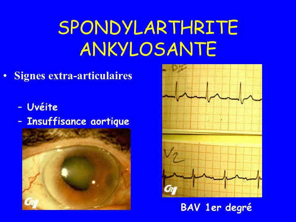 SPONDYLARTHRITE ANKYLOSANTE Signes extra-articulaires –Uvéite –Insuffisance aortique BAV 1er degré