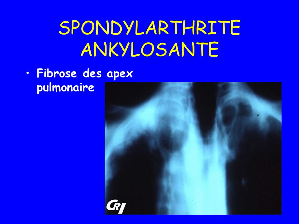 Syndrome de Fiessinger- Leroy-Reiter Arthrite Réactionnelles Infections à chlamydia trachomatis Infections digestives, diarrhées infectieuses.( Salmonellose) Possible évolution vers SPA