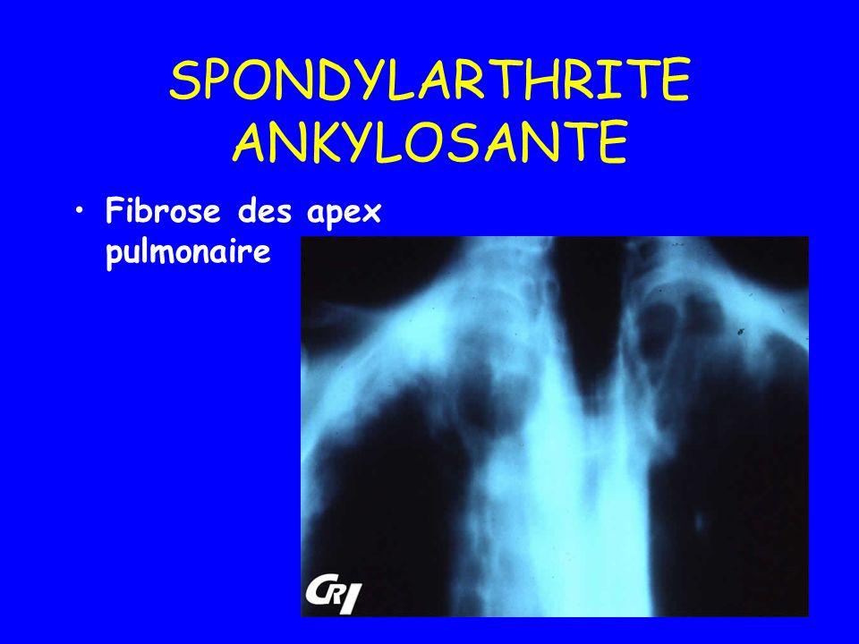 SPONDYLARTHRITE ANKYLOSANTE Fibrose des apex pulmonaire