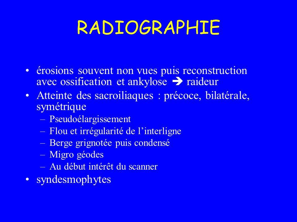 RADIOGRAPHIE érosions souvent non vues puis reconstruction avec ossification et ankylose raideur Atteinte des sacroiliaques : précoce, bilatérale, sym