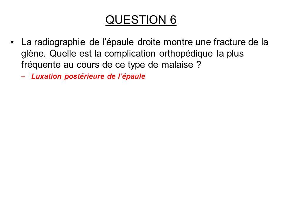 QUESTION 6 La radiographie de lépaule droite montre une fracture de la glène. Quelle est la complication orthopédique la plus fréquente au cours de ce