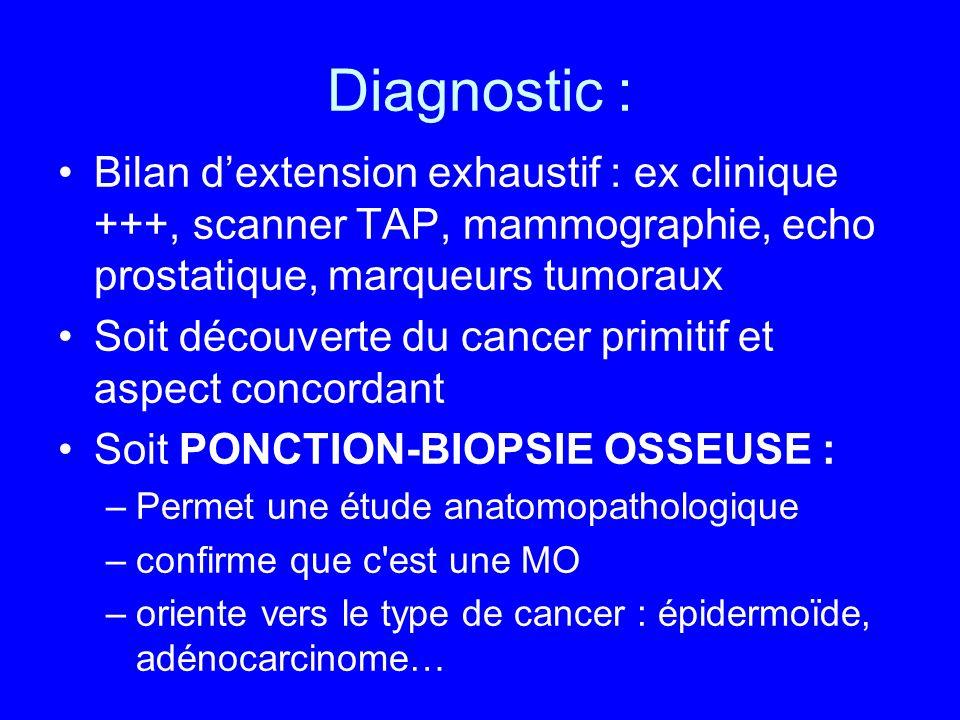Diagnostic : Bilan dextension exhaustif : ex clinique +++, scanner TAP, mammographie, echo prostatique, marqueurs tumoraux Soit découverte du cancer p