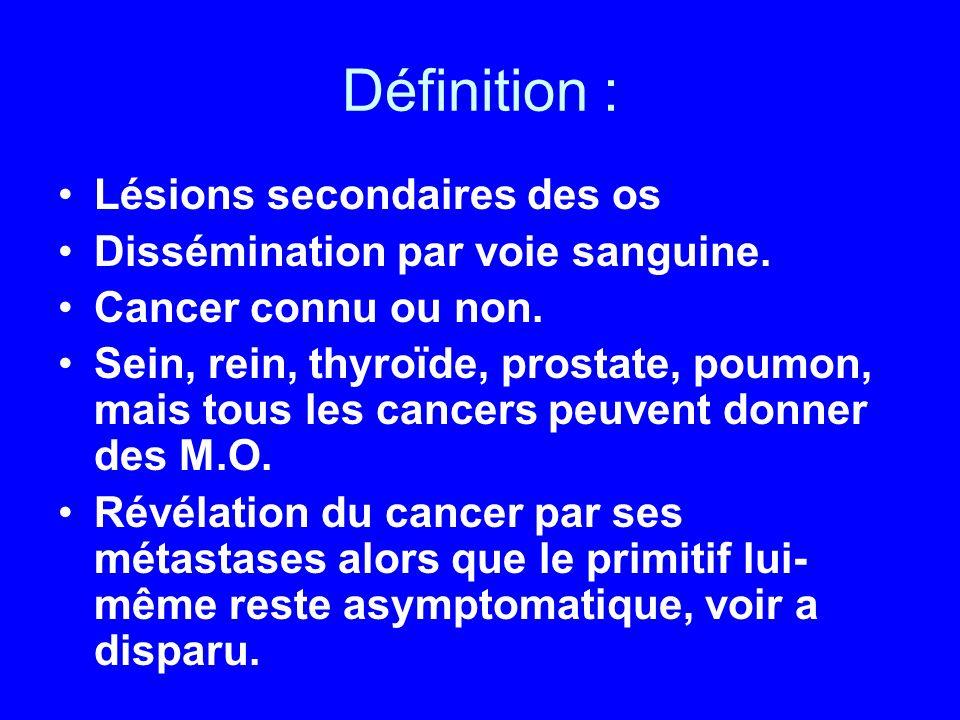 Diagnostic : Bilan dextension exhaustif : ex clinique +++, scanner TAP, mammographie, echo prostatique, marqueurs tumoraux Soit découverte du cancer primitif et aspect concordant Soit PONCTION-BIOPSIE OSSEUSE : –Permet une étude anatomopathologique –confirme que c est une MO –oriente vers le type de cancer : épidermoïde, adénocarcinome…