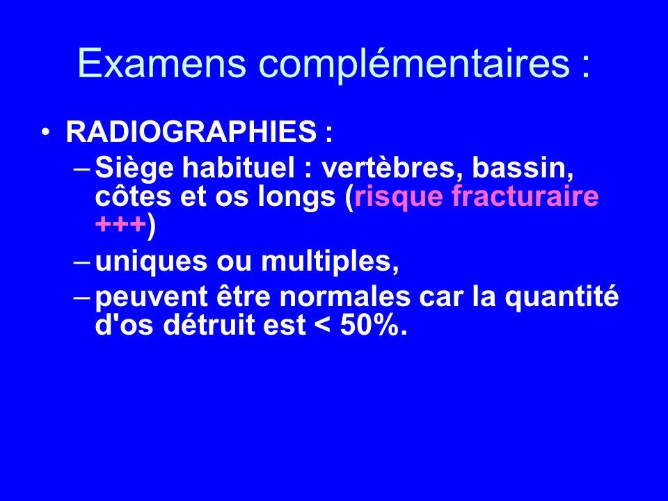 Examens complémentaires : RADIOGRAPHIES : –Siège habituel : vertèbres, bassin, côtes et os longs (risque fracturaire +++) –uniques ou multiples, –peuv