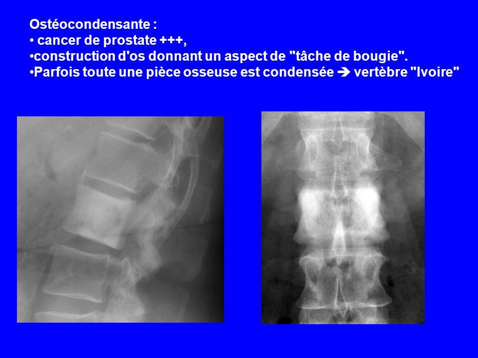 Ostéocondensante : cancer de prostate +++, construction d'os donnant un aspect de