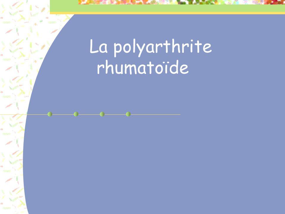 POLYARTHRITE RHUMATOÏDE Après plusieurs poussées Mains Arthrite MCP, IPP Subluxation articulaire et déviation des doigts (pouce en Z, boutonière, col de cygne) Rupture tendineuse Carpe Aspect en dos de chameau Saillie de la tête cubitale (touche de piano)