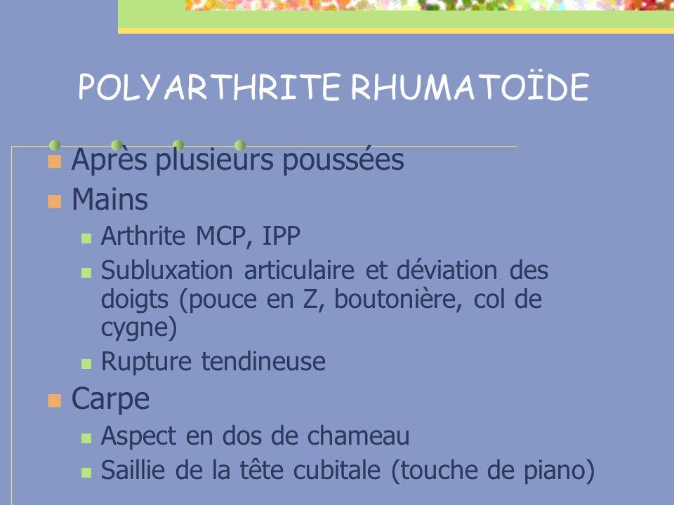 POLYARTHRITE RHUMATOÏDE Après plusieurs poussées Mains Arthrite MCP, IPP Subluxation articulaire et déviation des doigts (pouce en Z, boutonière, col