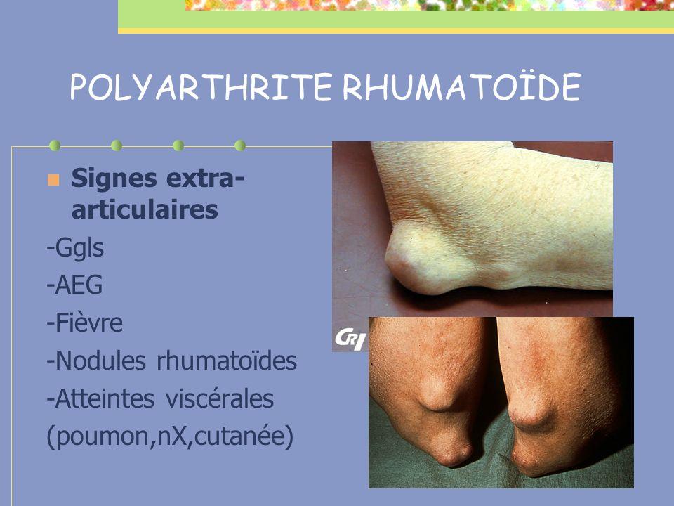 POLYARTHRITE RHUMATOÏDE Signes extra- articulaires -Ggls -AEG -Fièvre -Nodules rhumatoïdes -Atteintes viscérales (poumon,nX,cutanée)