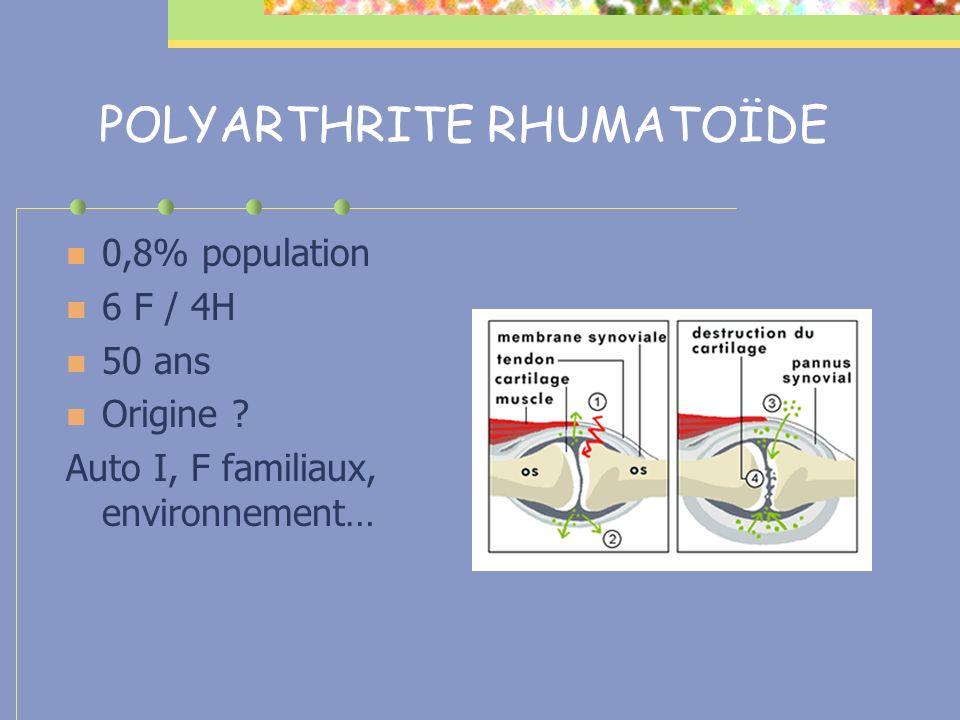 POLYARTHRITE RHUMATOÏDE 0,8% population 6 F / 4H 50 ans Origine ? Auto I, F familiaux, environnement…